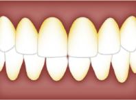 Causes of Dental Plaque